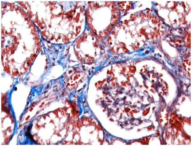 Kidney Physiopathology