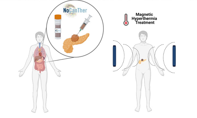 Vall d'Hebron leads a clinical study testing the use of nanoparticles for the treatment of locally advanced pancreatic cancer